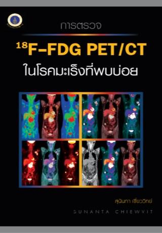 หน้าปก-การตรวจ-18f-fdg-petct-ในโรคมะเร็งที่พบบ่อย-ookbee