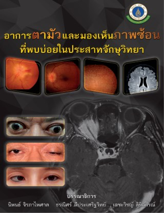 หน้าปก-อาการตามัวและมองเห็นภาพซ้อนที่พบบ่อยในประสาทจักษุ-ookbee