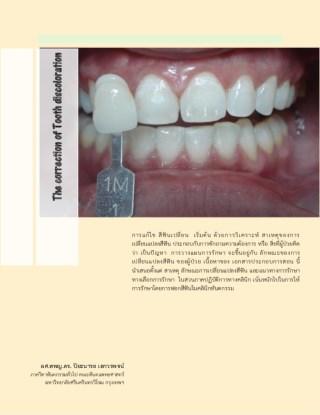 หน้าปก-the-correction-of-tooth-discoloration-ookbee