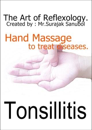 หน้าปก-tonsillitis-ookbee